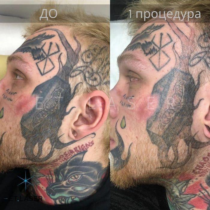 Денис Шальных удалил татуировки