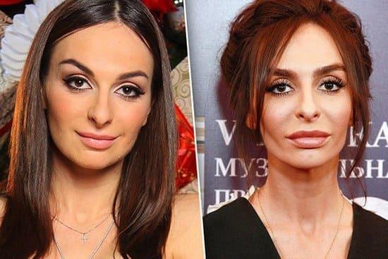 Екатерина Варнава до и после пластики, фото в юности и ...
